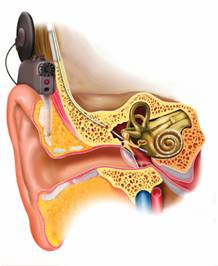 Freedom Scope - Cochlear Implant
